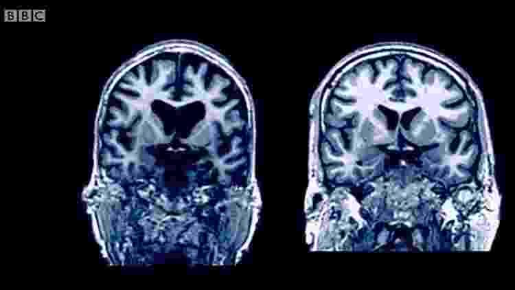 imagem dos cérebros - Reprodução BBC - Reprodução BBC