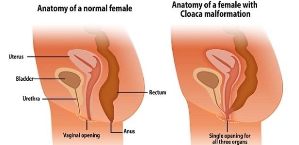 Ilustração mostra diferença entre anatomia de uma mulher normal (com três canais) e a malformação em que há apenas um, a cloaca - Reprodução/Daily Mail