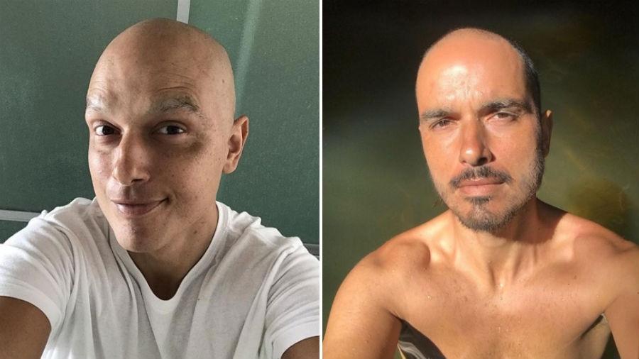 Léo Rosa durante o tratamento de câncer e agora, já curado   - Reprodução/Instagram