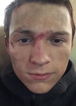 Tom Holland quebra o nariz pela terceira vez