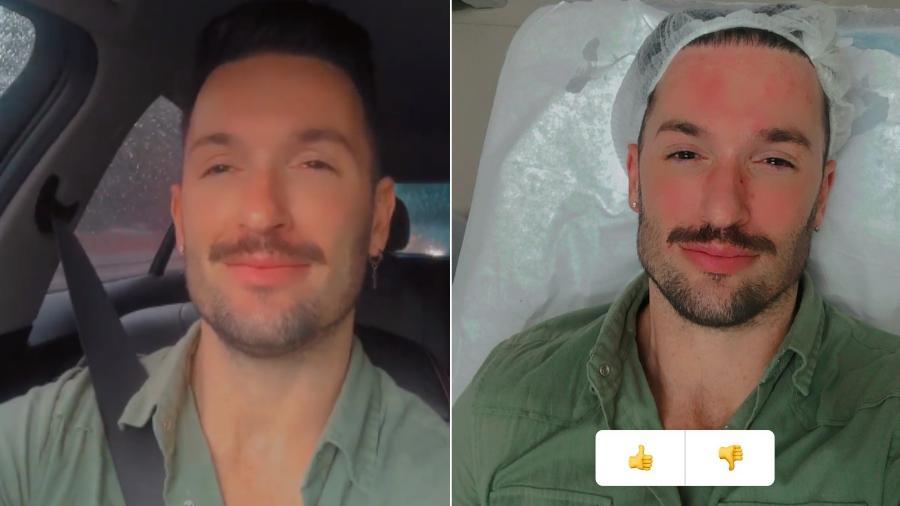 Diego Hypolito, antes e depois da aplicação de botox no rosto - Reprodução/Instagram