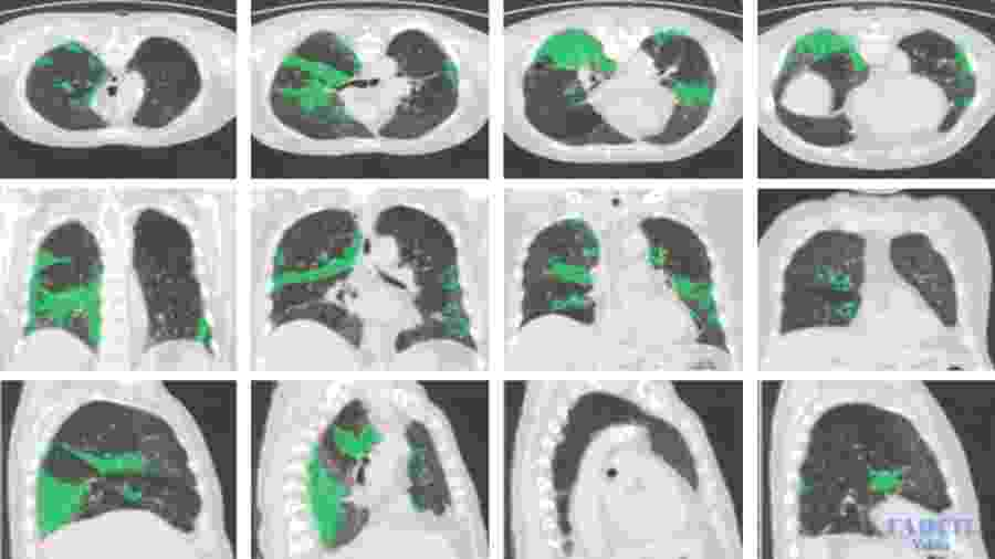 Tomografia computadorizada com lesões de Covid-19 identificadas por sistema da Visibilia - Divulgação