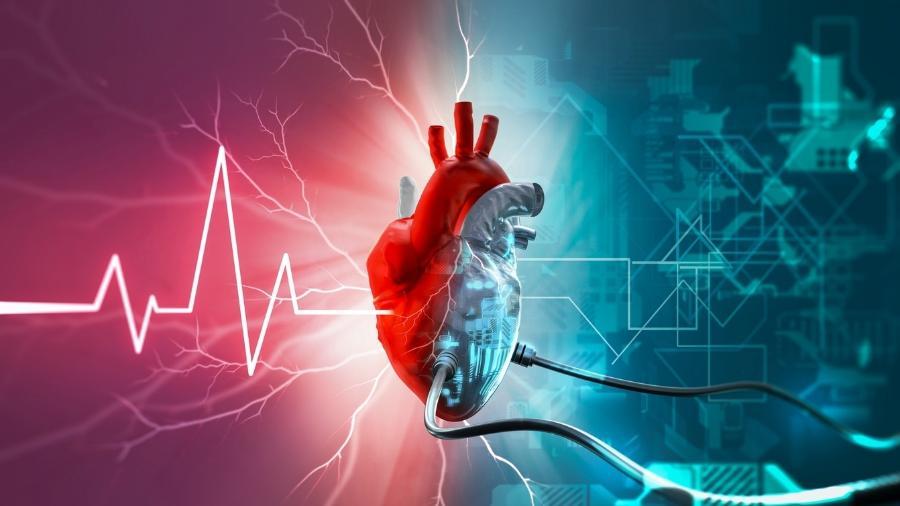 Dispositivo de assistência ventricular é diferente de marca-passo, mas também ajuda pacientes cardíacos - iStock