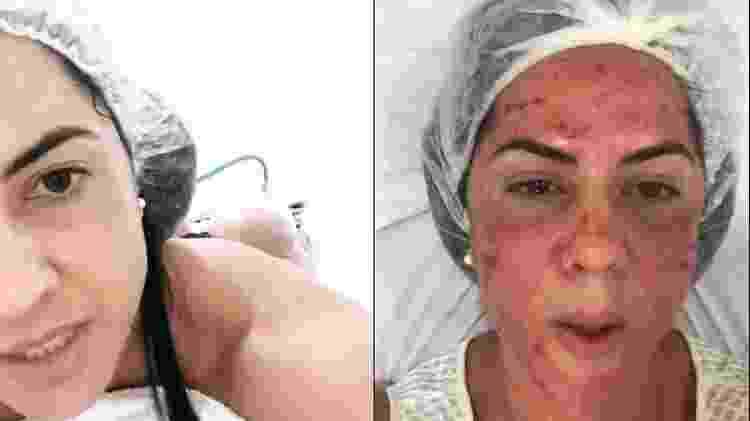 Graciele Lacerda exibe seus tratamentos estéticos para seguidores - Reprodução / Instagram - Reprodução / Instagram