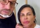 Gretchen exibe resultado de novos procedimentos estéticos no rosto - Reprodução/Instagram