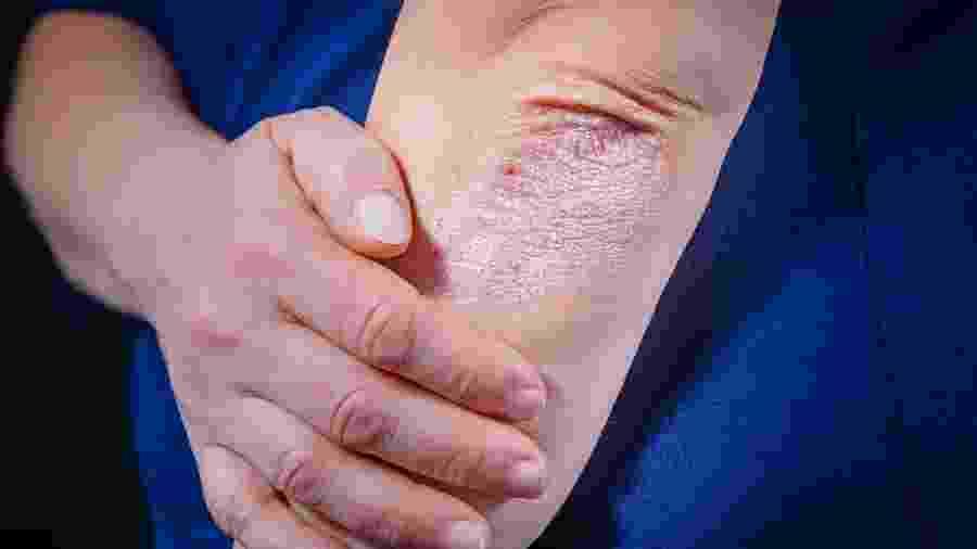 Coceira é um dos sintomas da psoríase - iStock
