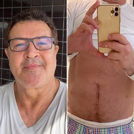 Beto Barbosa  - Reprodução/Instagram