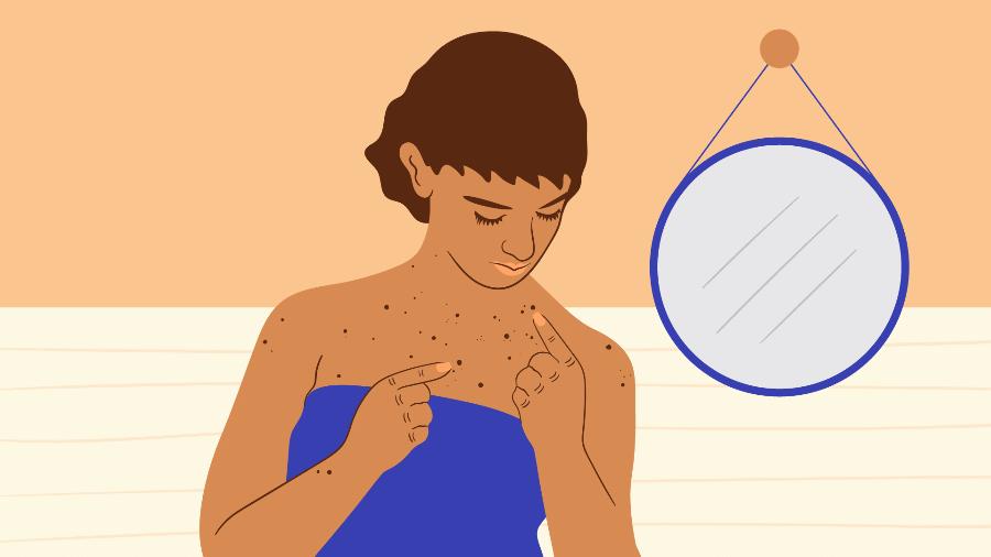 O câncer de pele pode ser dividido em três tipos principais: carcinoma basocelular, espinocelular ou melanoma - Camila Rosa/VivaBem