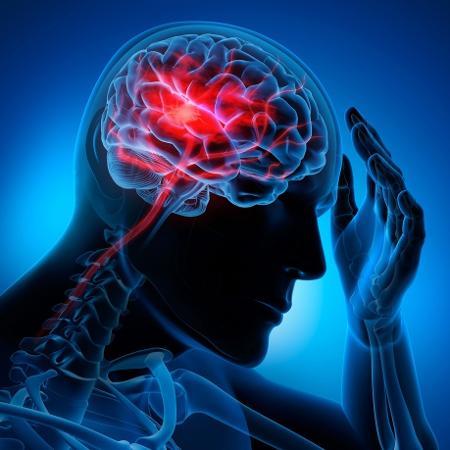 Descoberta realizada por pesquisadores da Unesp e da startup Brain4care possibilita novos tratamentos para hipertensão intracraniana e complicações decorrentes, como o acidente vascular cerebral - iStock