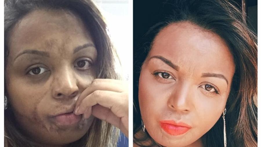 Livia Cristal, antes e depois - Arquivo Pessoal