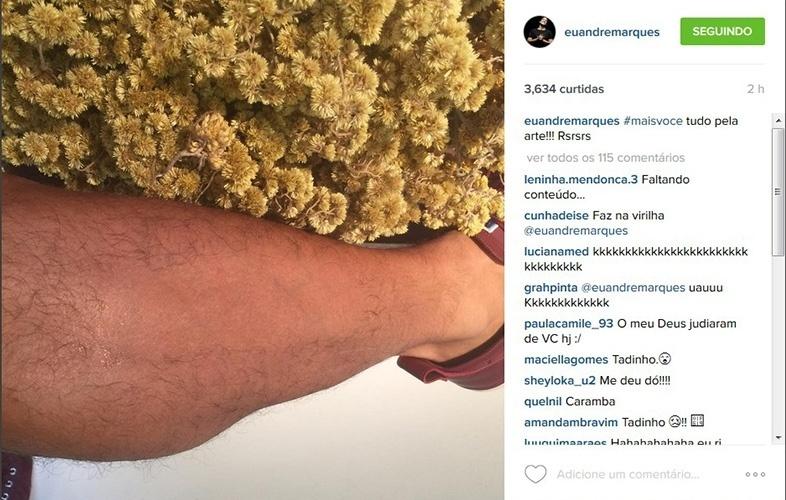 11.set.2015 - André Marques mostra perna depilada no Instagram.