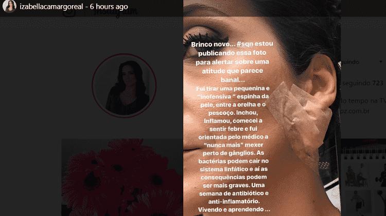 A jornalista Izabella Camargo mostra curativo para inflamação no rosto - Reprodução/Instagram - Reprodução/Instagram