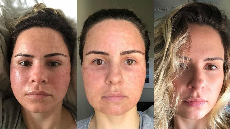 Ana Paula Renault mostra mudança no rosto após procedimento estético - Reprodução/Instagram