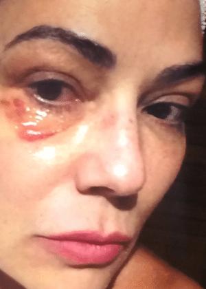 Luiza Brunet sofreu fratura em quatro costelas e afirma ter levado socos e chutes durante o espancamento - Reprodução/TV Globo