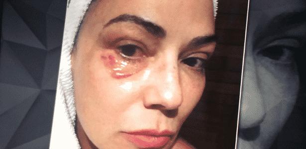 Luiza Brunet sofreu fratura em quatro costelas e afirma ter levado socos e chutes durante o espancamento - Reprodução/TV Globo - Reprodução/TV Globo
