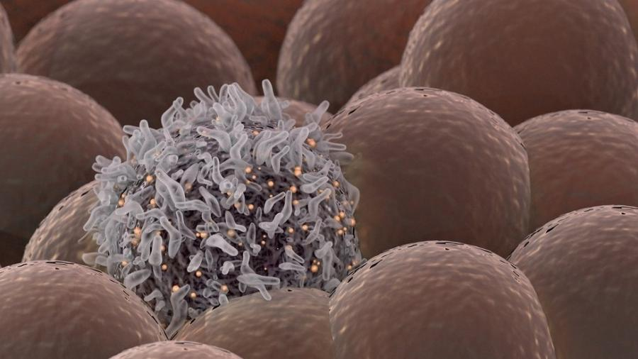 """Uma célula corrompida que sai de controle, diferente de suas """"vizinhas"""" saudáveis - Getty Images"""
