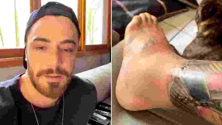 Felipe Titto mostra a perna mordida por cachorro inchada - Reprodução/Instagram