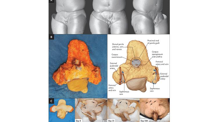 O painel A mostra uma reconstrução tomográfica computadorizada pré-operatória da extensão da lesão; o B mostra o enxerto; o C mostra o enxerto antes do procedimento, juntamente com imagens clínicas dos dias 8, 15 e 340 do pós-operatório. - Redett et al., NEJM, 2019 - Redett et al., NEJM, 2019