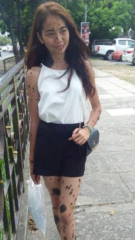 A malasiana Evita Delmundo nasceu com o corpo coberto de pintas - Reprodução/Instagram