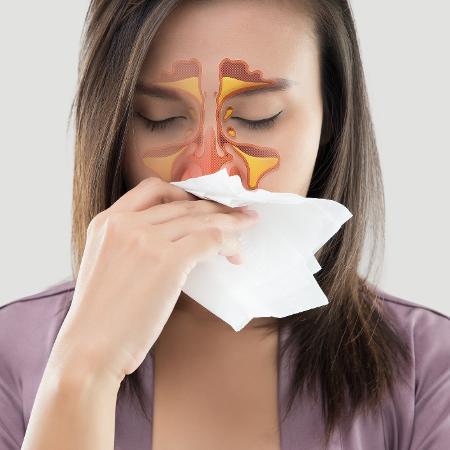 Sinusite é a inflamação dos seios paranasais - iStock