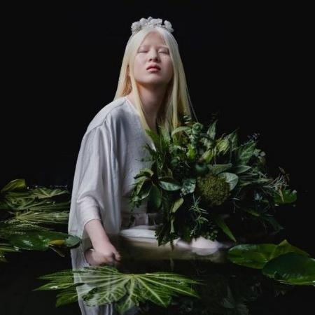 O albinismo de Xueli Abbing, hoje com 16 anos, a levou ao abandono quando era um bebê - @LUXVISUALSTORYTELLERS