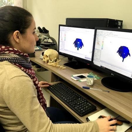 Pesquisadores da Unicamp elucidam resposta celular para deformação do osso alveolar, provocada por sobrecarga mecânica em resposta à extração dentária. Descoberta é resultado da bolsa de iniciação científica de Beatriz Carmona Ferreira  - Arquivo da pesquisadora