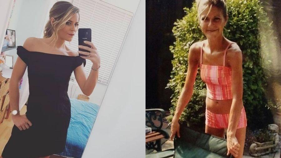 Gemma Oaten fala que enfrentou a anorexia por 13 anos - Reprodução/Instagram