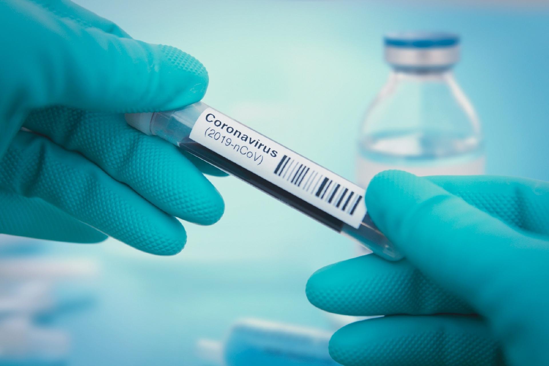 Coronavírus: como funcionam os testes rápidos que detectam anticorpos? -  VivaBem - UOL VivaBem