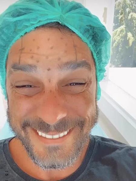 Diego Grossi mostra procedimento aos 38 anos - Reprodução/Instagram