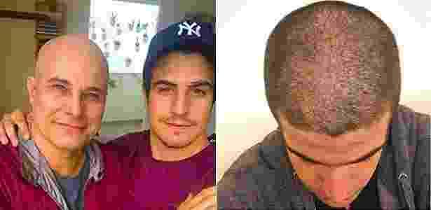 Enzo Celulari raspa o cabelo em homenagem ao pai, Edson Celulari, que luta contra o câncer - Reprodução/Instagram/enzorcelulari