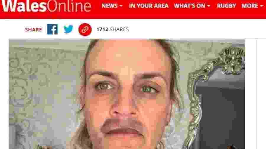 Kelly Rogers, de 40, realizou preenchimento labial que a deixou com hematomas no rosto - Reprodução/WalesOnline
