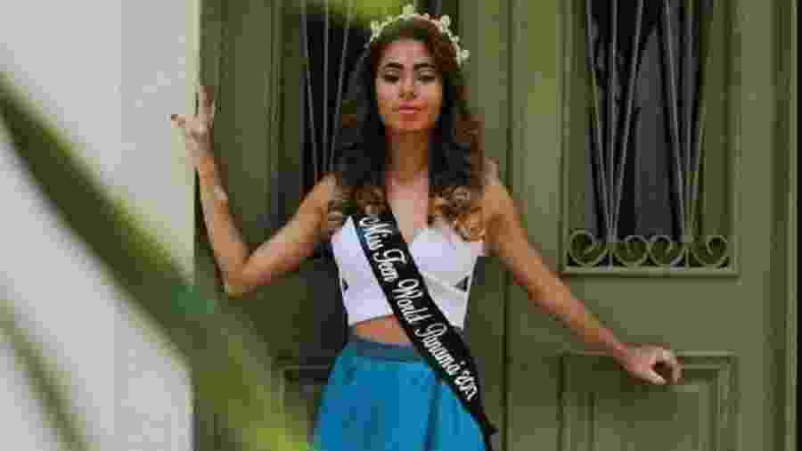 Modelo diz ter sido expulsa de concurso por ter vitiligo - Reprodução/CNN en Español