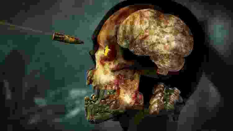 Zombie Raio-X -  -