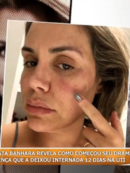 """Após infecção, Renata Banhara conta que pensou em se matar: """"Eu ainda não superei"""" - Reprodução/SBT"""