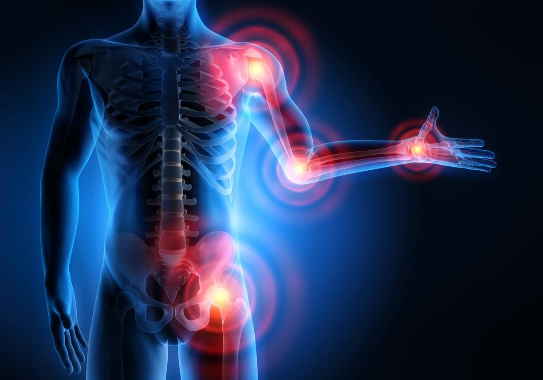 Artrite reumatoide: apesar de crônica, com tratamento, vida pode ser normal  - 21/04/2020 - UOL VivaBem