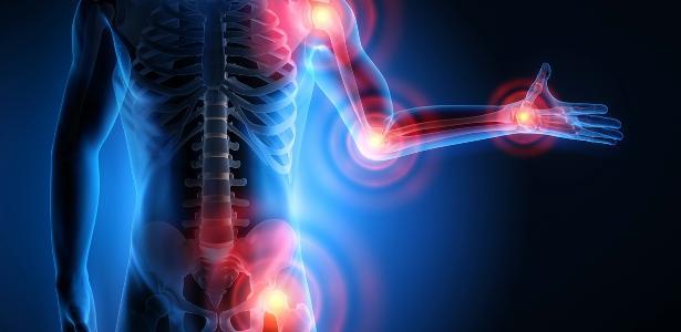 Molécula criada em laboratório auxilia no tratamento da artrite – UOL