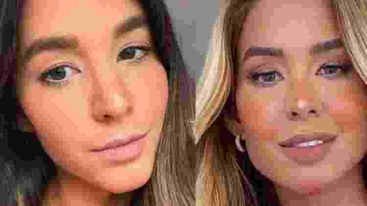 Kerline, antes e depois da harmonização facial - Reprodução - Reprodução