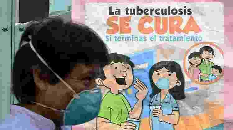 A tuberculose latente pode ser detectada com um exame de pele ou sangue - Getty Images - Getty Images