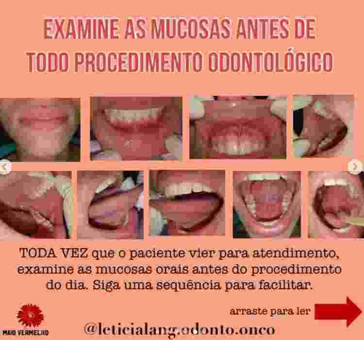 autoexame câncer de boca - Reprodução/Instagram - Reprodução/Instagram