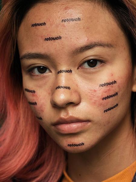 Ensaio sobre aceitação da acne - Reprodução/Instagram/Peter DeVito