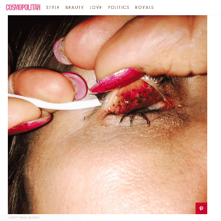 Os olhos de Theresa Lynch sofreram por causa dos resíduos de máscara de cílios - Reprodução/Cosmopolitan.com