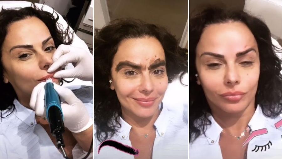 Viviane Araújo durante procedimentos estéticos no rosto - Reprodução/Instagram