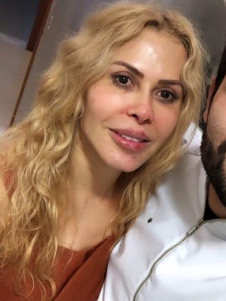 Cantora Joelma faz preenchimento labial com o dentista Igor Costa Alves - Reprodução/Instagram