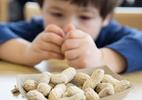 Alergia a amendoim pode ter tratamento eficaz, indica estudo - GETTY IMAGES