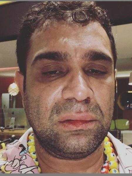 Evandro Santo alega ter sido agredido após show em Marília (SP) - Reprodução