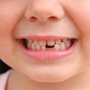 O dente de leite pode ser retirado em casa, mas é preciso tranquilizar a criança - Getty Images