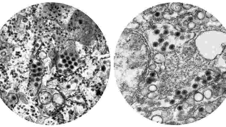 Os círculos escuros nestas imagens de microscopia representam os vírus da dengue e da zika. As proteínas de superfície dos dois tipos apresentam uma similaridade genética de 41% a 46% - Frederick Murphy/CDC | Cynthia Goldsmith/CDC - Frederick Murphy/CDC | Cynthia Goldsmith/CDC