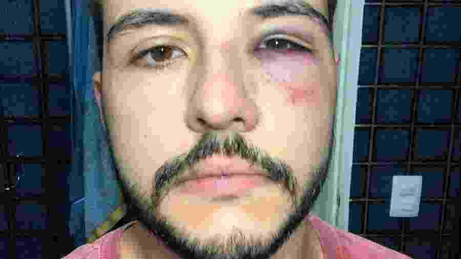 Matheus Ribeiro, jornalista da Record TV, foi agredido em uma tentativa de roubo - Reprodução/Instagram