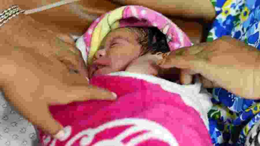 Cesarianas podem salvar vidas, mas também podem trazer riscos desnecessários para mãe e criança - Getty Images