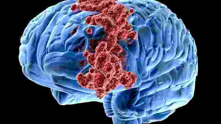 Tumor cerebral - iStock - iStock